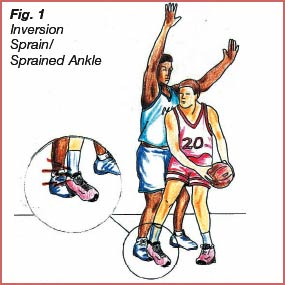 Causes of Ankle Sprains